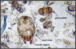 Dust mite, skin, and pollen seen with a light  microscope. Gimmie some skin.