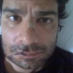 (Foto archivo) El animador Luis Chataing, cuando tuvo un accidente..en moto.