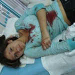 Los golpearon con botellas, piedras, palos y tubos. Entre los 15 heridos se encuentra un joven que recibió un golpe en la cabeza