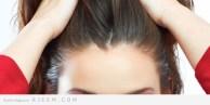 خلطات مجربة و فعالة للتخلص من تساقط الشعر