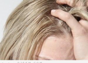 نصائح لعلاج قشرة الرأس