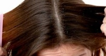 تخلصي من تساقط الشعر والقشرة في وقت واحد