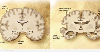 مرض الزهايمر و كيفية الوقاية منه