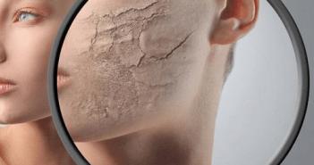 العناية بالبشرة الجافة و علاجها