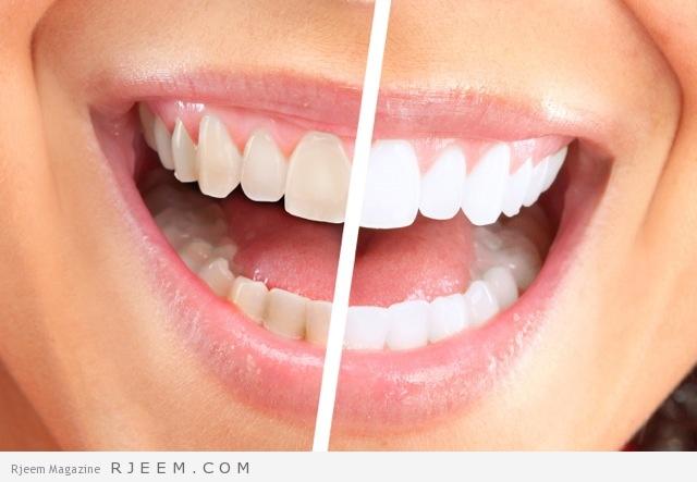 تبييض-الاسنان