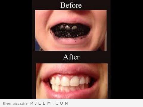 تبييض الاسنان بالفحم
