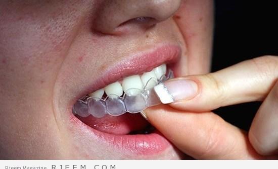تبييض الاسنان بالقوالب
