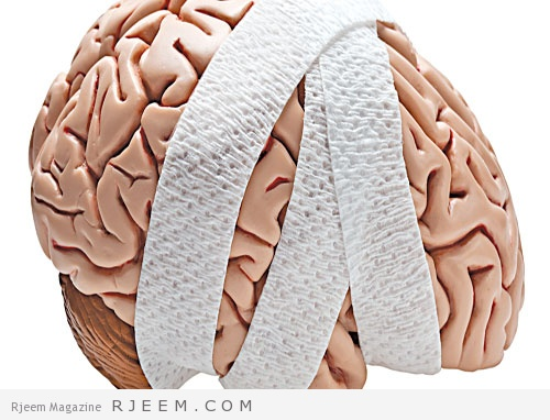 علاج إصابات الدماغ الرضية