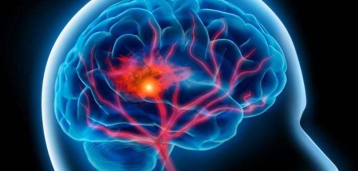 الجلطة الدماغية