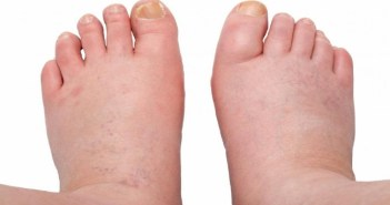 Swollen-Ankles-Legs-and-Feet