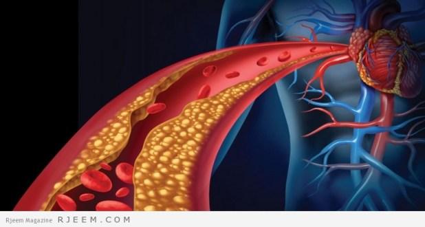 علاج الكولسترول - كيف تقلل نسبة الكولسترول في الدم