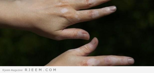 البهاق - وصفات لعلاج البهاق