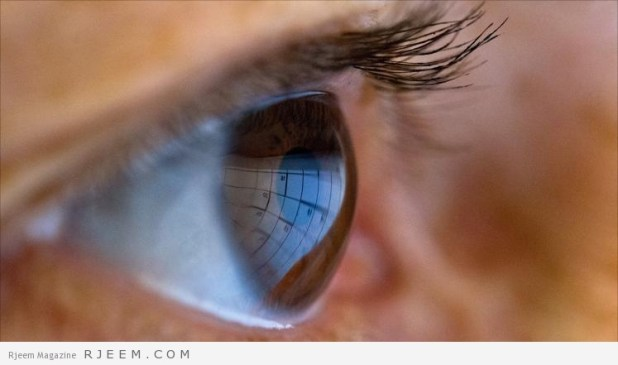اسباب و اعراض ارتفاع ضغط العين