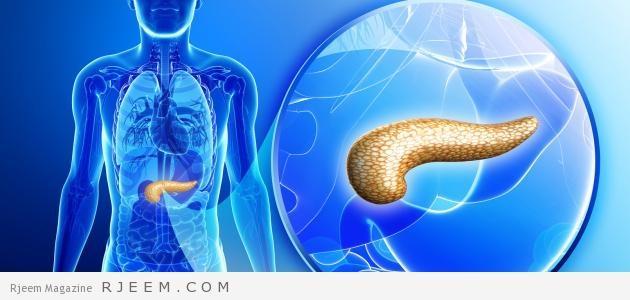 التهاب البنكرياس اسباب وعلاج