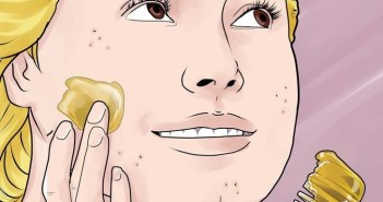 20 وصفة منزلية لعلاج الكلف