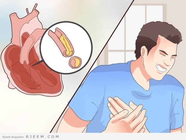 10 نصائح للمحافظة على القلب