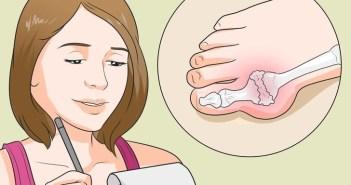7 علامات تدل على اصابتك بالنقرس