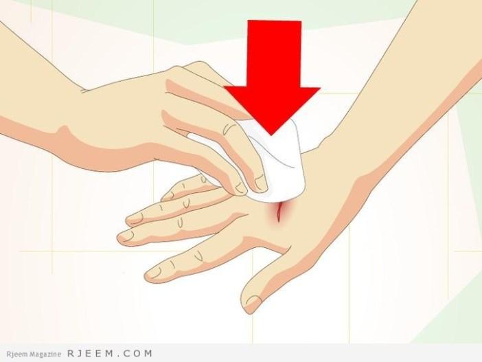 17 طريقة طبيعية لعلاج اثار الجروح