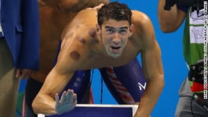 160809172558-michael-phelps-cupping-large-169