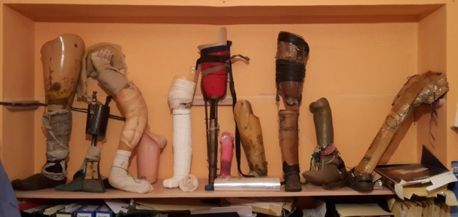 Leg prosthetics that have been replaced by the clinic