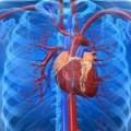 Taquicardia con otros síntomas (dolor pecho, espalda, etc.)