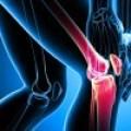 Artritis y Artrosis: tratamiento con aceites prensados en frío