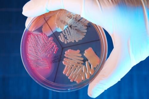 Resultado de imagen de Infecciones urinarias