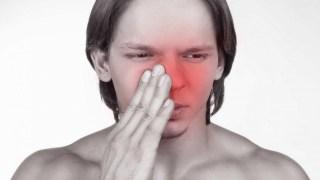 7 Faktor Penyebab Penyakit Sinusitis