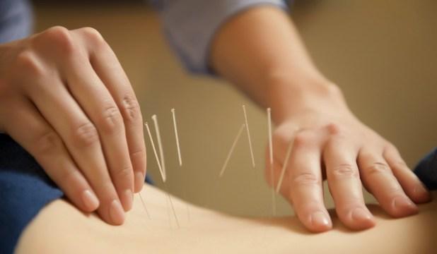 beneficios-da-acupuntura