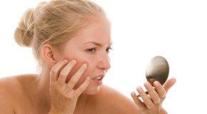 Akne – Korisni savjeti za glatku kožu