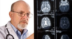 Prepoznajte moždani udar