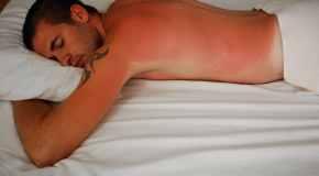 Liječenje opeklina od sunca