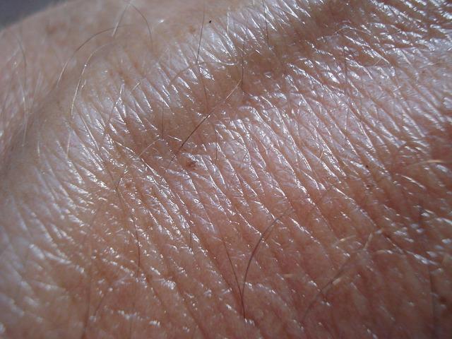 Skin cancer (1)