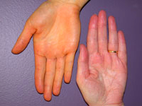 Carotenaemia hand (left) compared with a normal hand http://dermnetnz.org/systemic/carotenaemia.html