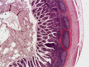 A section through the wall of the ileum showing Peyer's Patches (red oval) (Image: https://upload.wikimedia.ord)