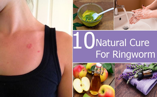 Natural Remedies To Cure Ringworm