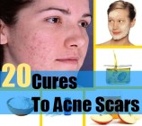 20 Cures To Acne Scars