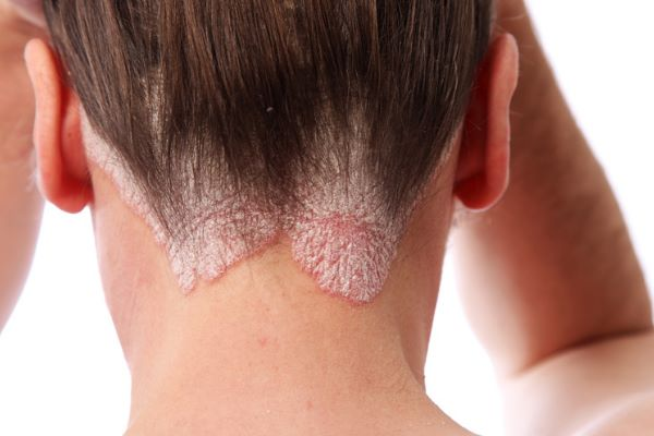8 Natural Cure For Scalp Psoriasis