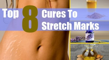 stretch-marks