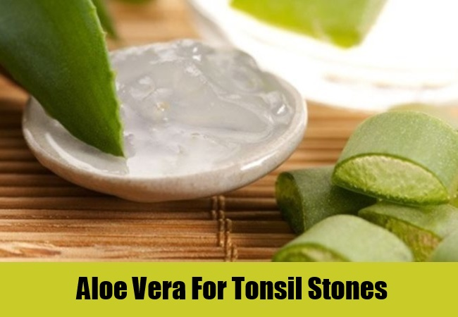 Aloe Vera For Tonsil Stones