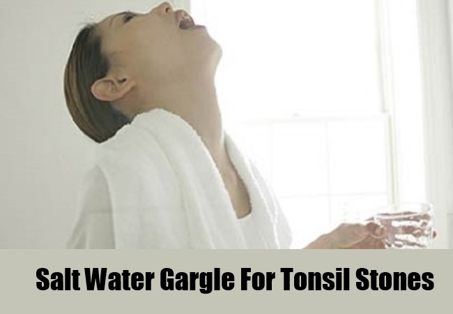 Salt Water Gargle For Tonsil Stones
