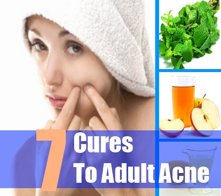 Cures for adult acne