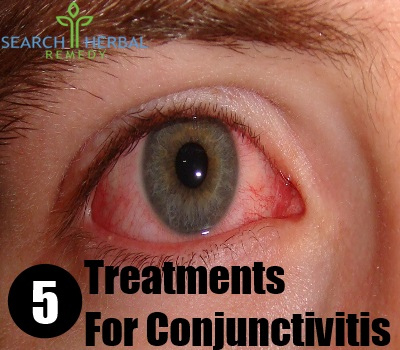 5 Treatments For Conjunctivitis