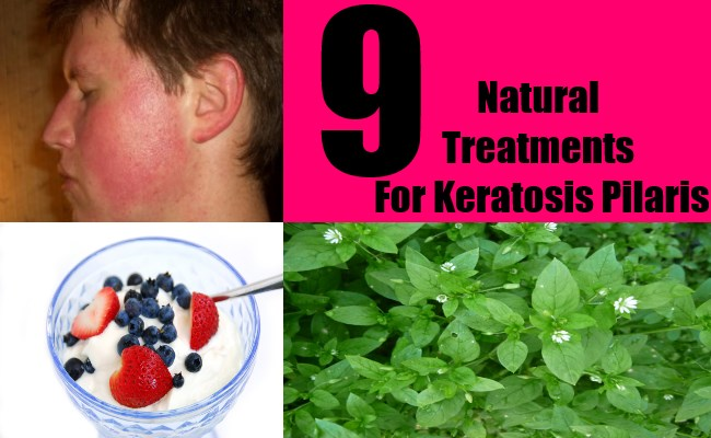 9 Natural Treatments For Keratosis Pilaris