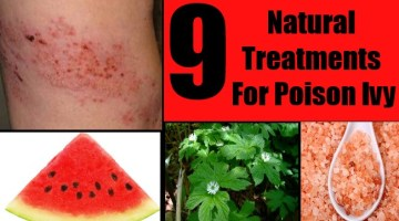 9 Natural Treatments For Poison Ivy