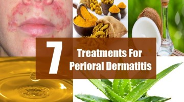 7 Treatments For Perioral Dermatitis