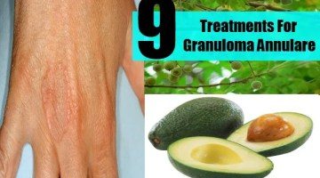 9 Treatments For Granuloma Annulare