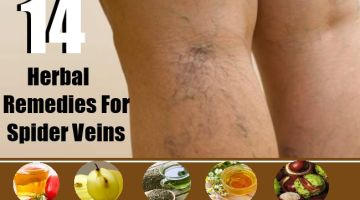 Herbal Remedies For Spider Veins