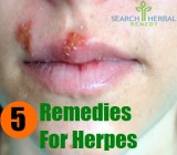 5 Remedies for Herpes