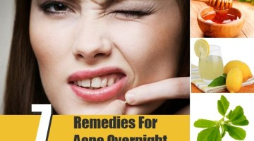 7 Remedies For Acne Overnight